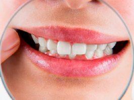 5 facilidades que você terá com um plano dental