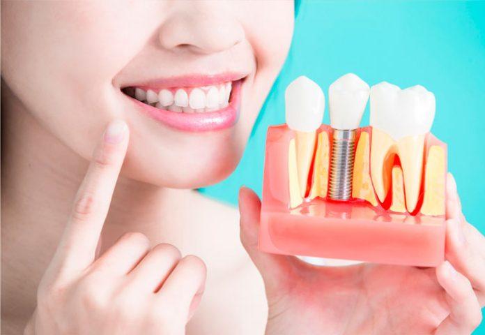 Implante dentário: quais os principais cuidados?