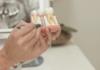 Especialista explica e aponta vantagens do tratamento com implantes dentários
